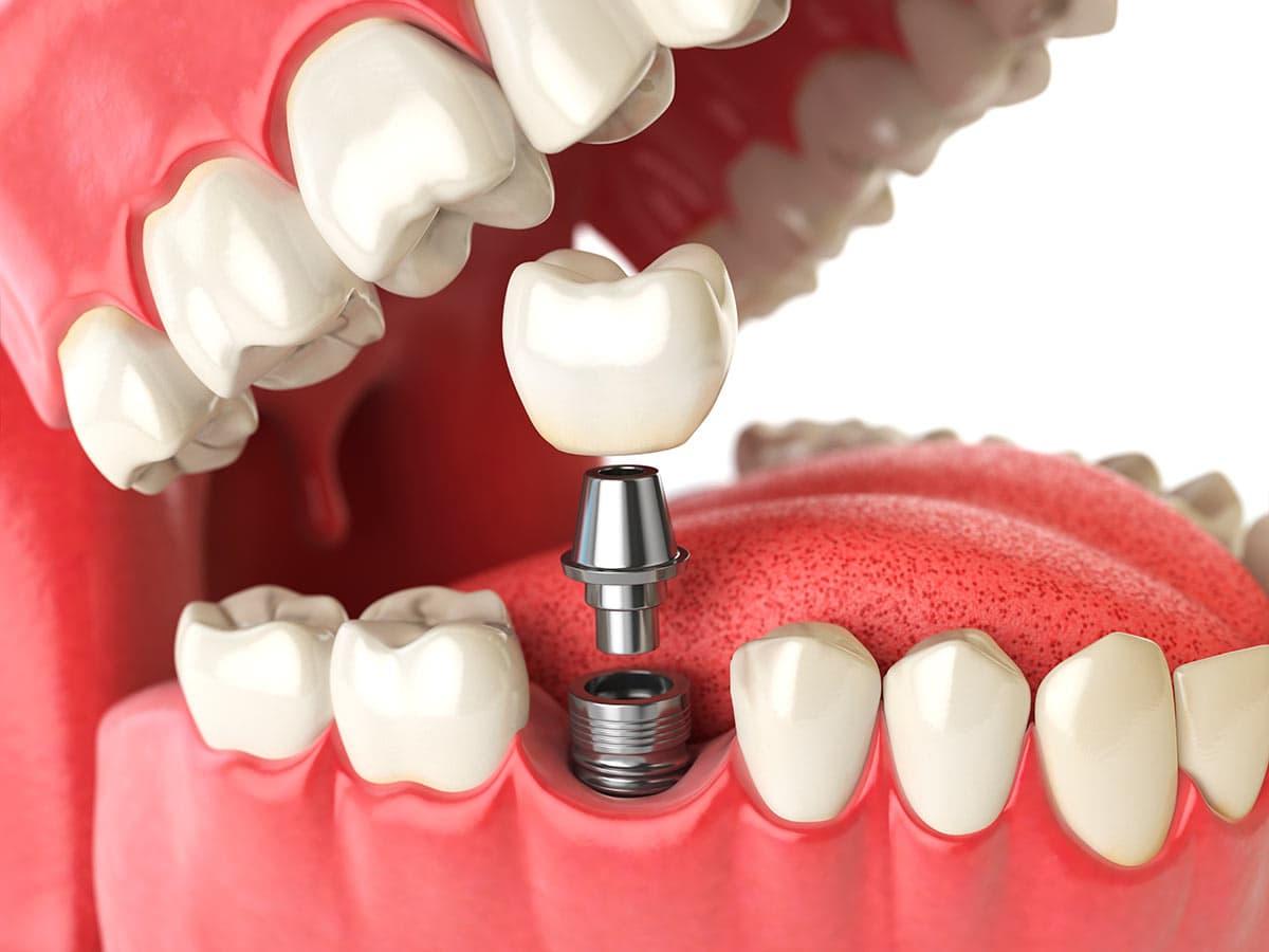 """""""implante dental""""的图片搜索结果"""