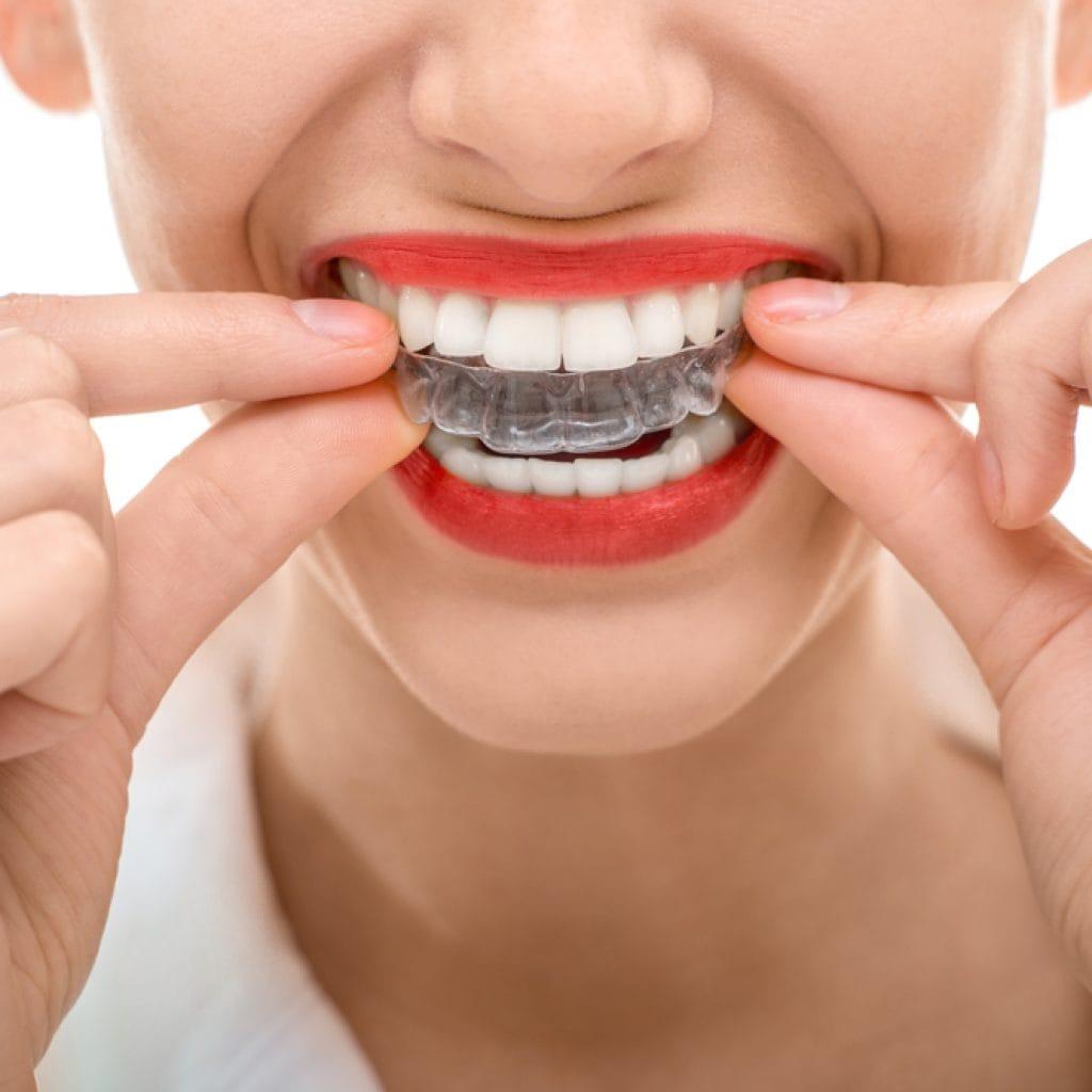ortodoncia-invisible-ok