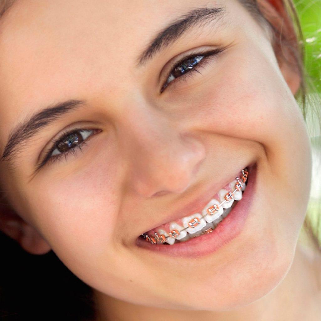 ortodoncia-nia