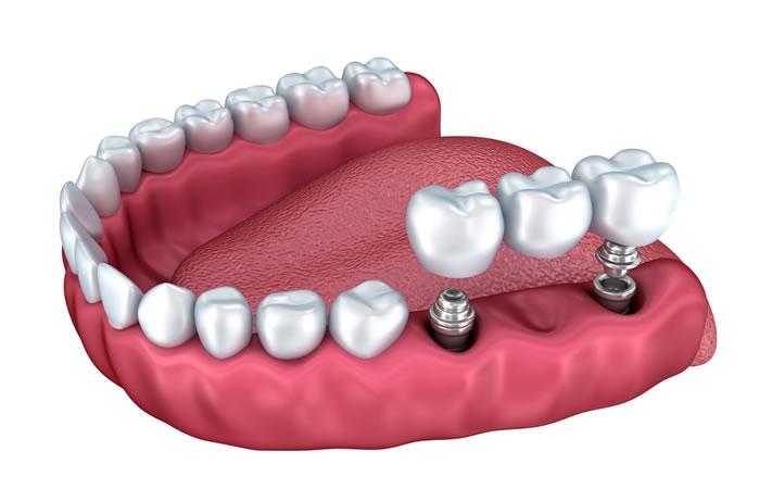puente-sobre-implantes