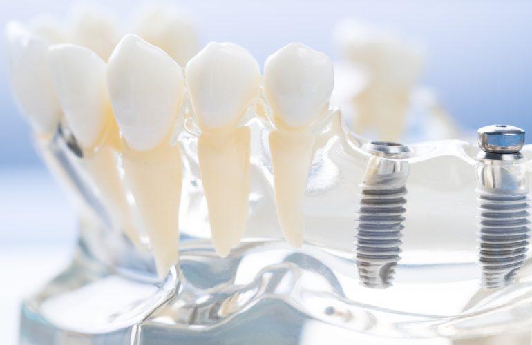 imagen de implantes dentales linares
