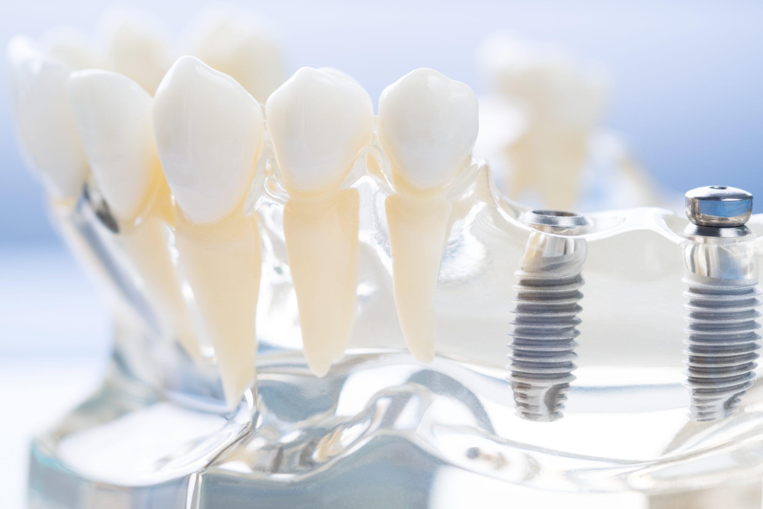 imagen de implantes dentales clinica dental linares
