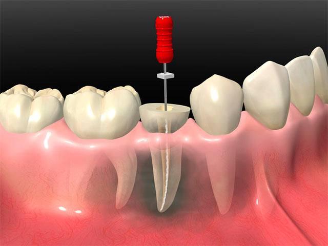 imagen de endodoncia clinica dental linares