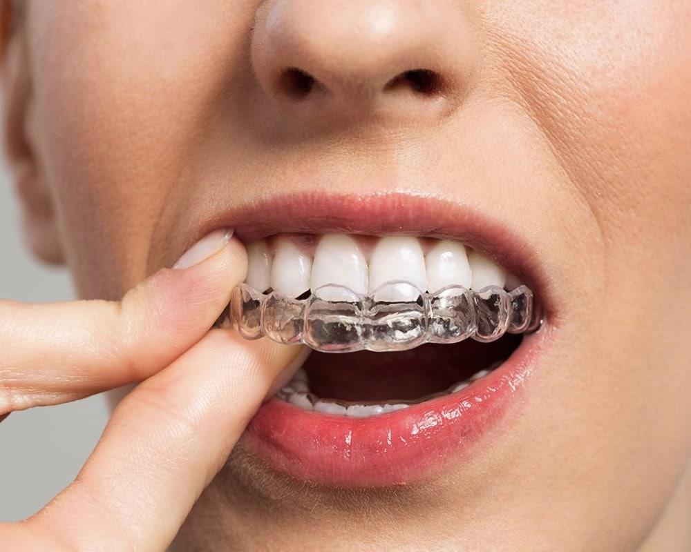 imagen de ortodoncia invisible invisalign linares