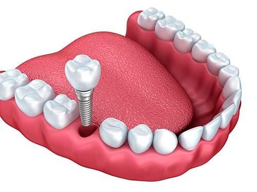 implante unitario linares