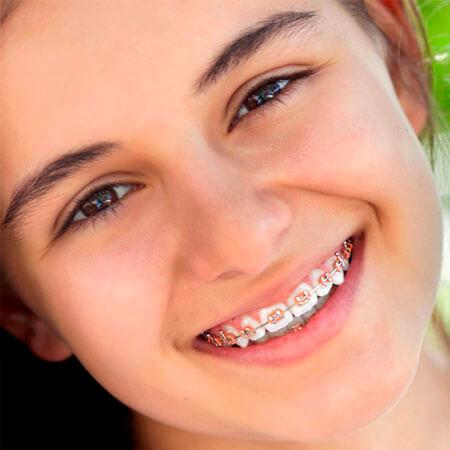 ortodoncia niños linares