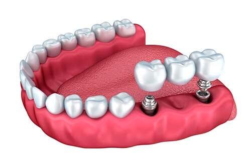 puente sobre implantes linares