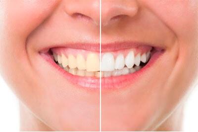 estetica dental linares
