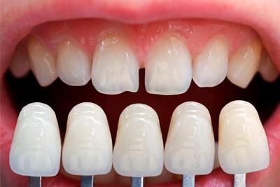 expertos odontologia estetica linares