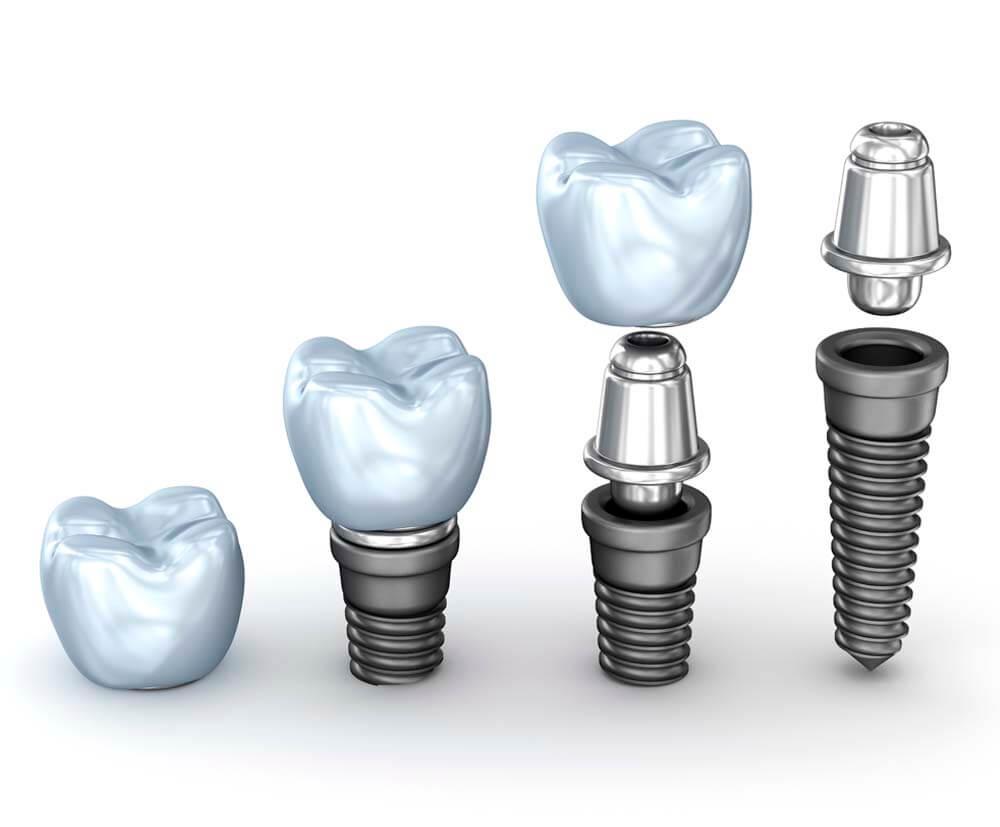 tipos de implantes dentales en linares