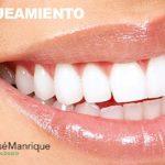 Blanqueamiento dental láser: ¿Antes o después de la ortodoncia?
