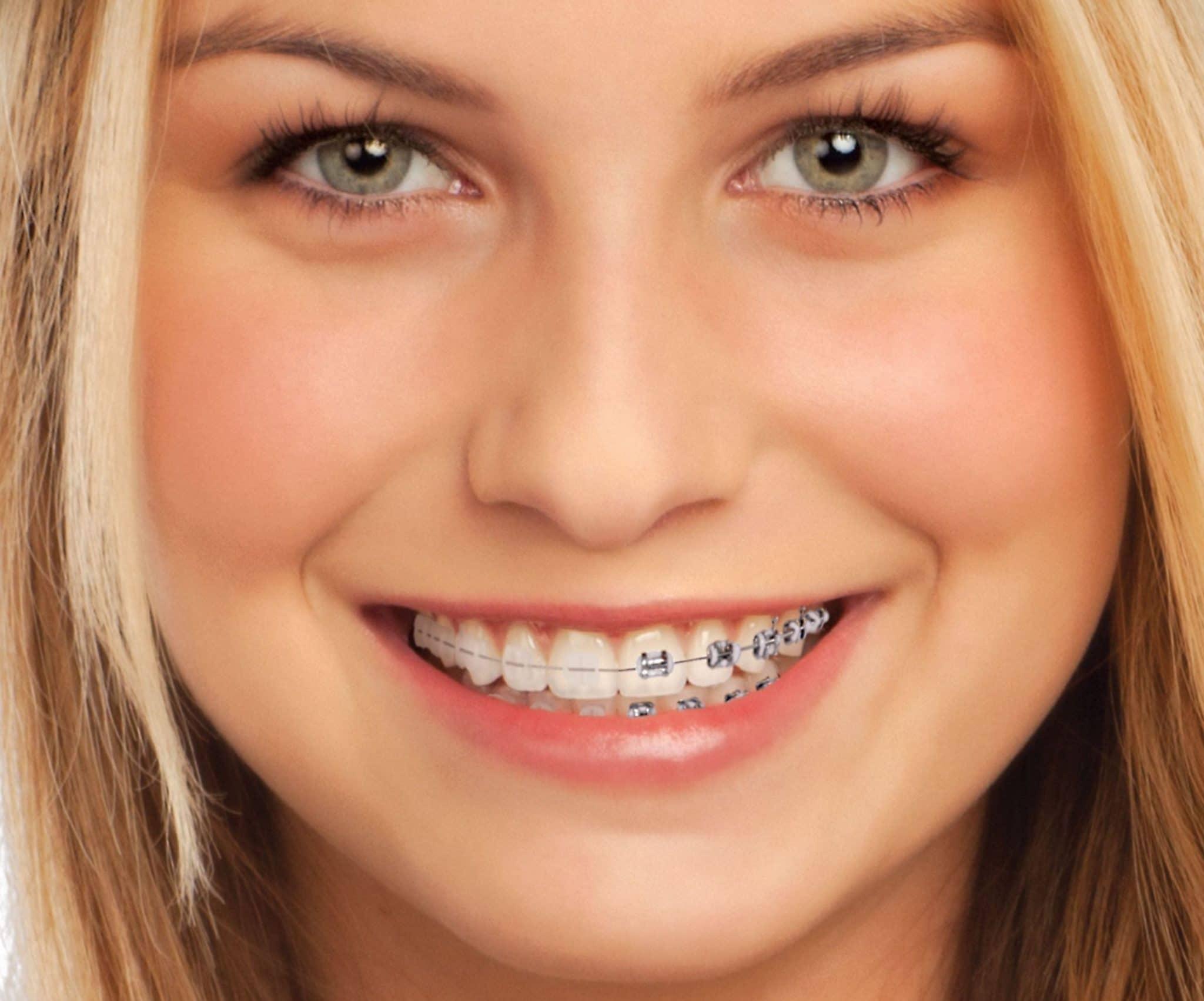 imagen de brackets-cerámica-ortodoncia-clinica-dental-linares