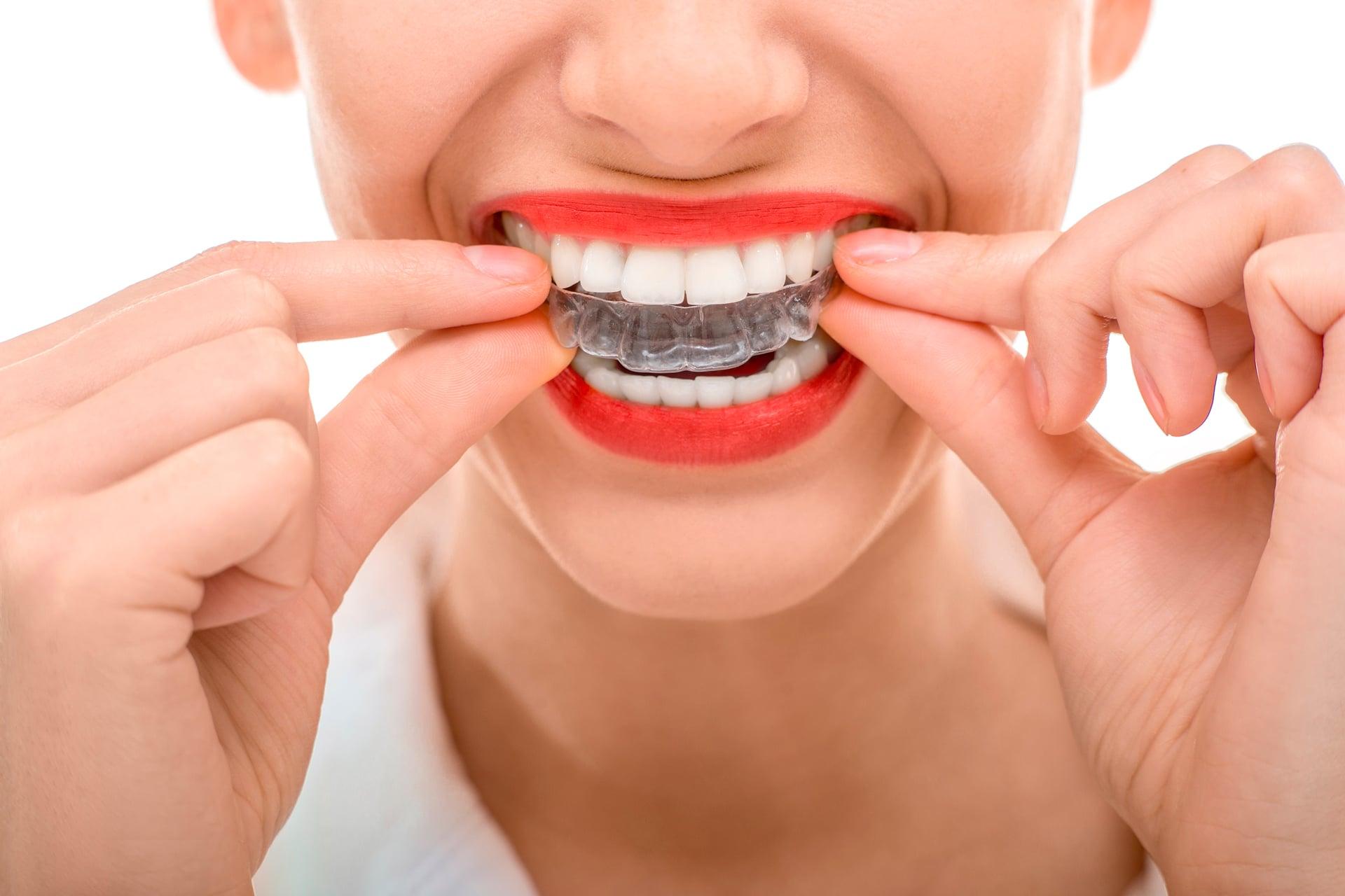 imagen de ortodoncia-invisible-invisalign-clinica-linares