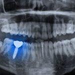imagen de Implantes dentales rechazo
