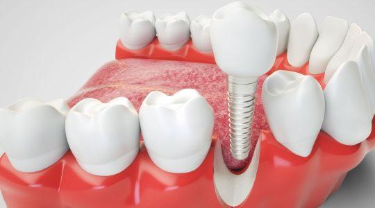 imagen de Mitos Implantes Dentales